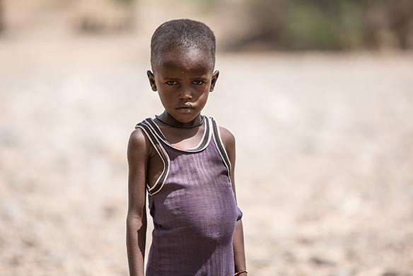 Why do malnourished children have big bellies?
